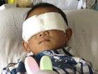 专家称山西被挖眼男童有望以电子眼恢复视力