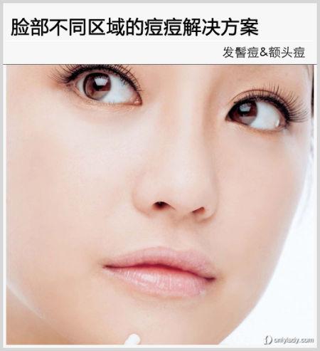 组图:达人教你脸部不同区域的痘痘解决方案