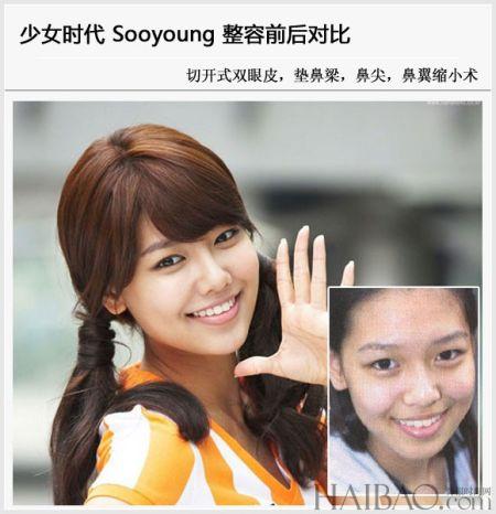 林允儿金泰妍领衔 少女时代整容前后对比曝光
