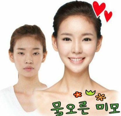 韩国整容特点