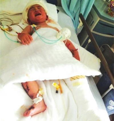 1岁多孩童,被开水烫伤,全身烧伤面积达40%